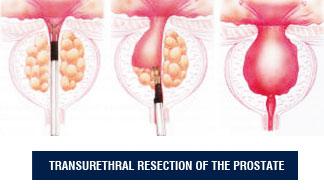 Benign Prostatic Hyperlasia (BPH)