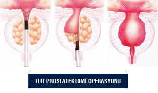 Prostat İyi Huylu Büyümesi (BPH)