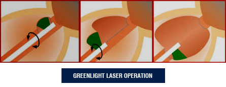 Greenlight Laser