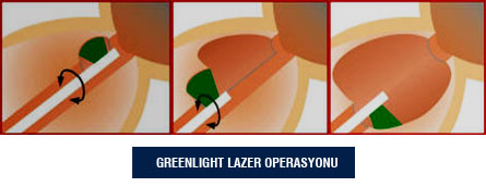 Greenlight Lazer