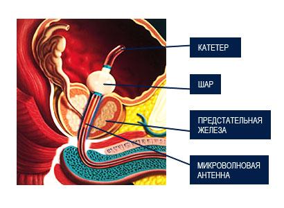 Доброкачественная гиперплазия предстательной железы (ДГПЖ)