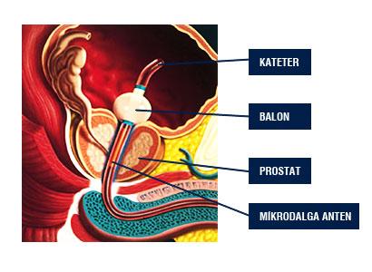 Prostat İyi Huylu Büyünmesi (BPH)