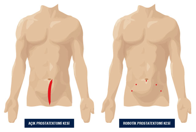 da Vinci Robotik Prostatektomi